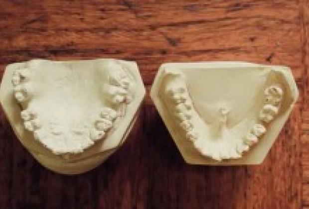 La historia de mis dientes chuecos